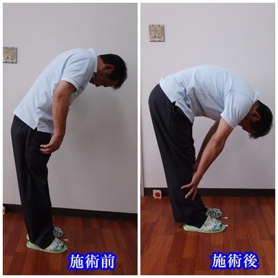 治療例2-2-1.jpgのサムネイル画像のサムネイル画像