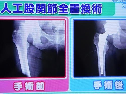 変形性股関節症の末期状態(壊れてくっ付いて動かない股関節)